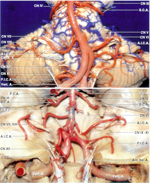 Figure 5: The basic anatomy of the brainstem and associated vasculature is shown (image courtesy of AL Rhoton, Jr).