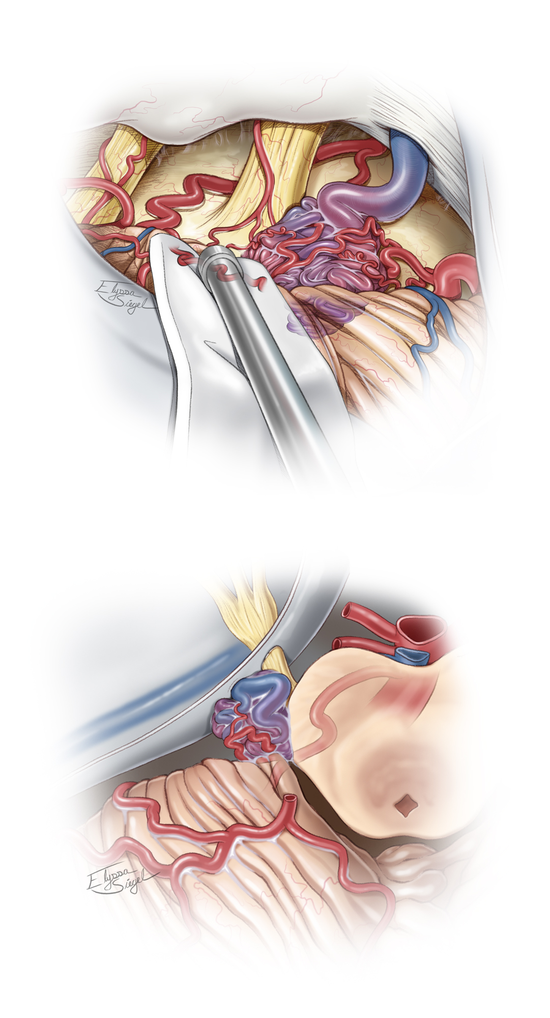Figure 12: A lateral pontine AVM is demonstrated (surgeon's view, top image). Note the relationship of the lesion to the trigeminal nerve root entry zone. Compared to anterior pontine AVM, the more lateral location of the lesion improves the safety of its resection. The AICA feeding vessels are often hidden on the other side of the nidus away from the surgeon, making their control challenging. An axial sketch (bottom image) further illustrates the pathoanatomy.
