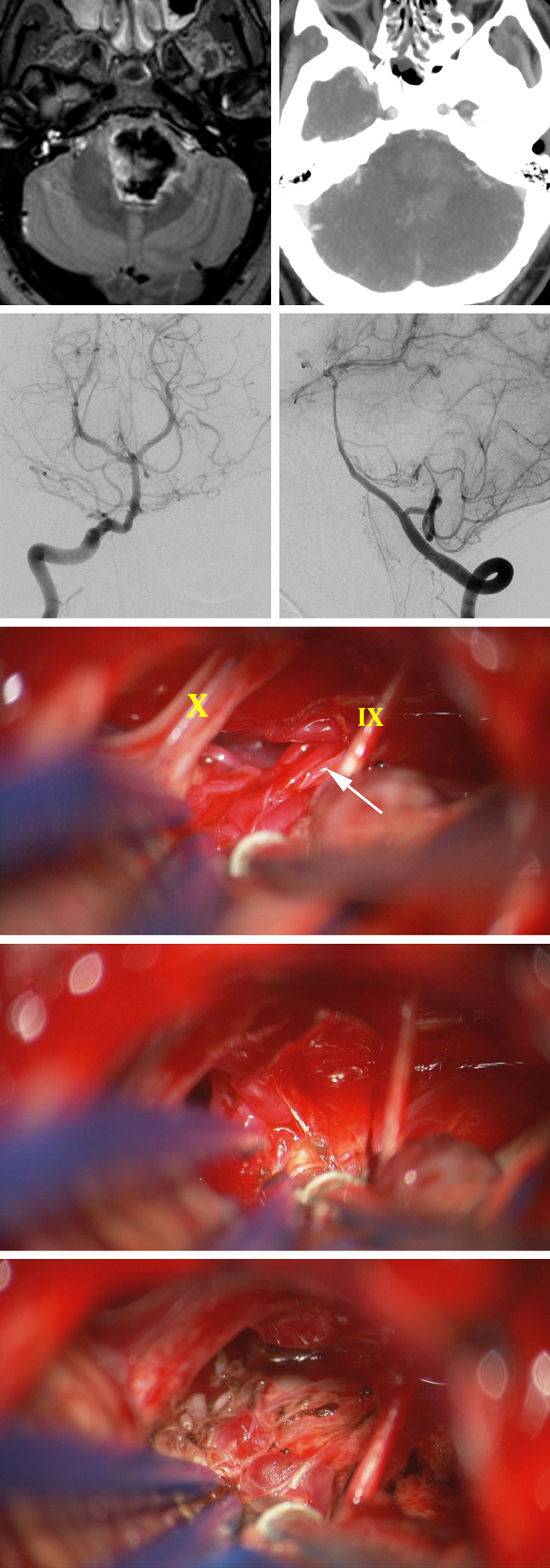Figure 15: This unfortunate 31 year-old male presented with sudden hemiplegia and was found to suffer from a large pontine hematoma; CT angiogram was relatively unremarkable (top row). AP and lateral vertebral angiograms demonstrated a small pontomedullary AVM fed partly by the branches from the proximal basilar artery and AICA (second row). The AVM was exposed via a left-sided retrosigmoid craniotomy (third row). The nidus was disconnected via the  in situ  occlusion technique (fourth row). The remaining dark draining vein on the surface of the brainstem was also coagulated at the end of the operation (last row).