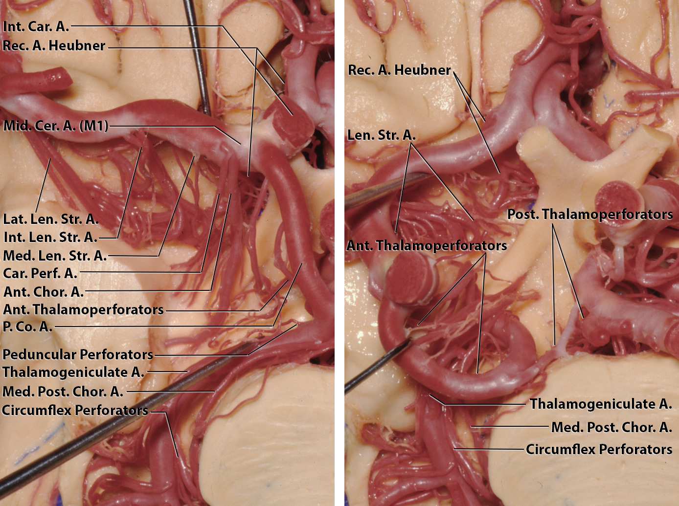 Figure 1: The origins of the perforating arteries, mentioned above, from an inferior view of the circle of Willis are illustrated (images courtesy of AL Rhoton, Jr).