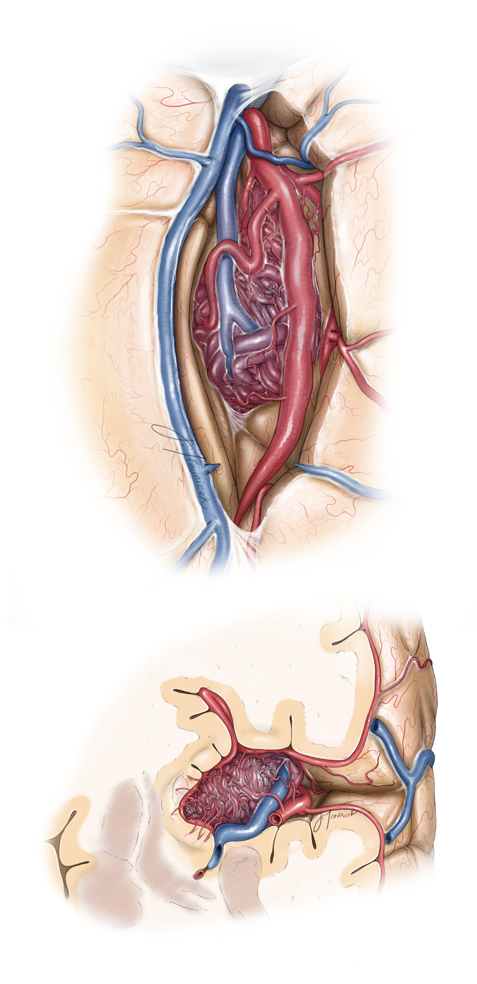 Figure 12: The pathoanatomy of a typical insular AVM on the left-side is demonstrated. Note the M2 feeding arteries (surgeon's view, top sketch). The coronal image (bottom sketch) illustrates the route of the draining vein and emphasizes the contribution of the deep feeding lentriculostriate arterioles.