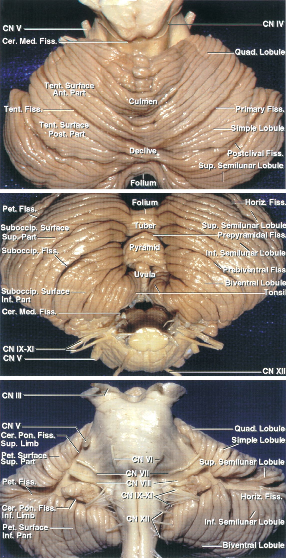 Figure 1: The tentorial (top), suboccipital (middle), and petrosal (bottom) surfaces of the cerebellum and their relevant anatomy are shown. The names of these surfaces are based on their overlying structures (images courtesy of AL Rhoton, Jr).