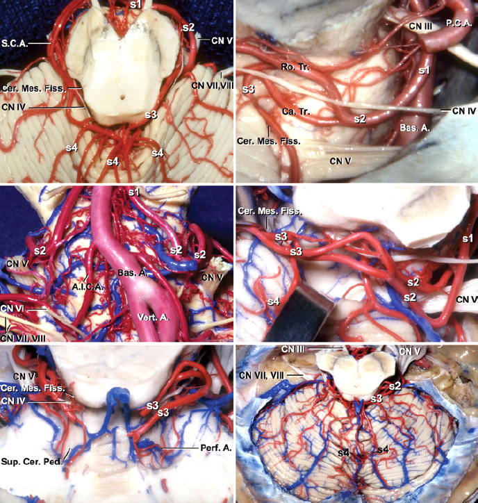 Figure 2: The relevant segmental anatomy of the SCA is shown (images courtesy of AL Rhoton, Jr). Early identification and occlusion of the AVM-associated arteries arising from this vascular tree is part the key maneuver to tackle tentorial and cerebellopontine (CP) angle AVMs.