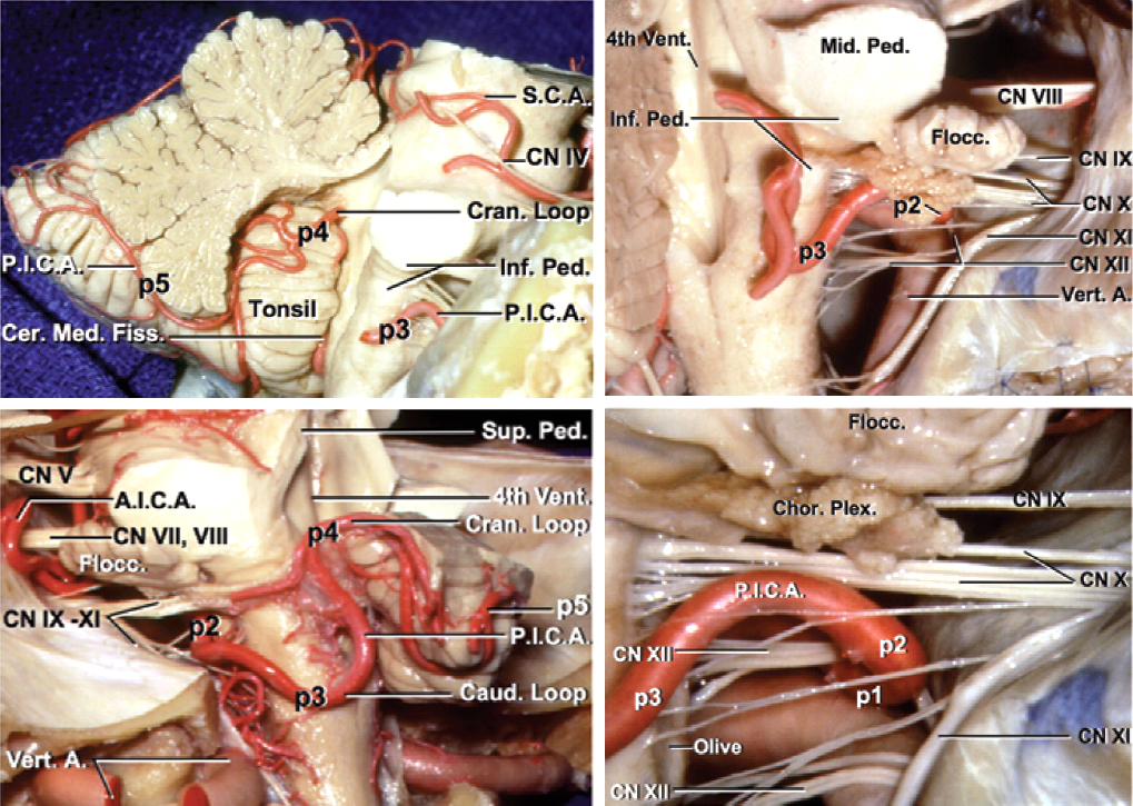 Figure 4: The relevant segmental anatomy of the PICA is shown (images courtesy of AL Rhoton, Jr).