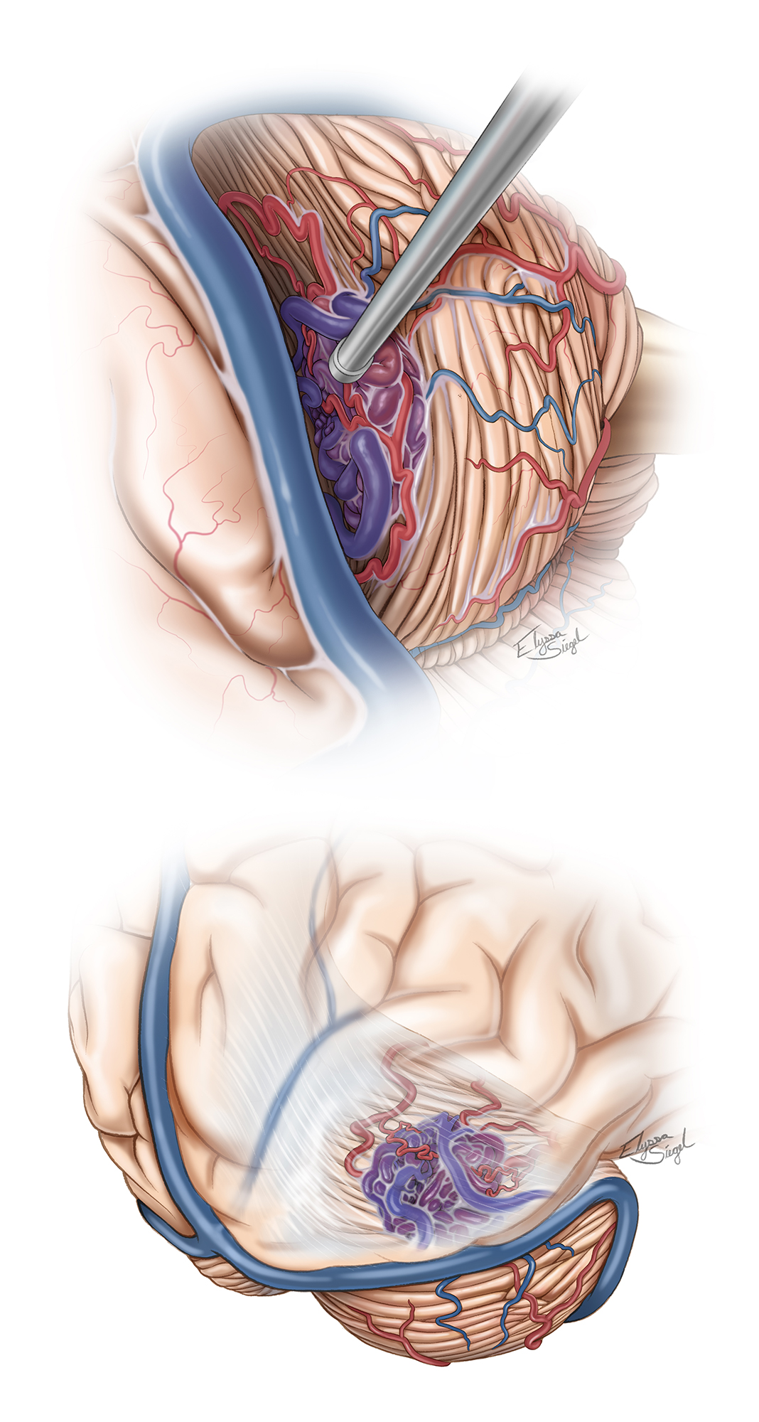 Figure 5: The surgeon's view (top) of a classic tentorial AVM is demonstrated. Note the supplying arteries and draining veins. An additional view for identification of the angioarchitecture is shown in the second sketch. The bridging AVM-associated draining veins should be preserved during superacerebellar dissection. Some of these veins join the vein of Galen by travelling over the cerebellum.