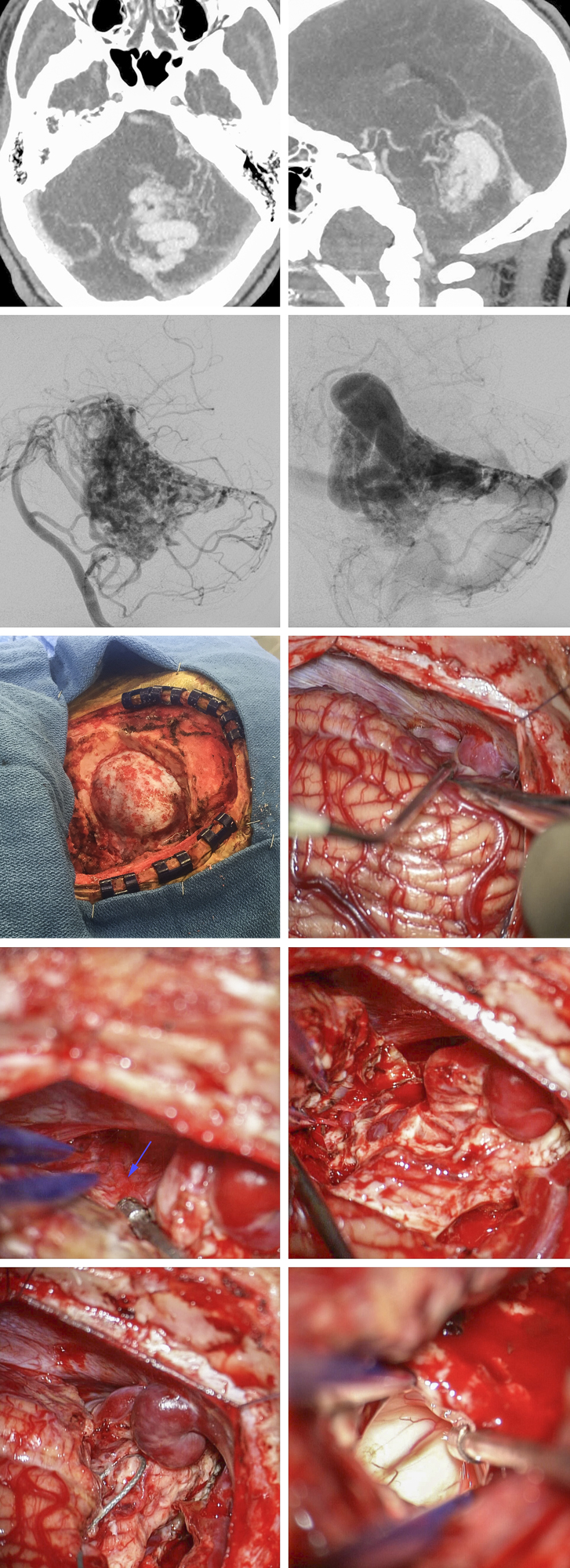Figure 6: A large tentorial AVM and the associated intraoperative findings are included. The first two rows demonstrate the angioarchitecture of the malformation. The patient was placed in the lateral position and a generous unilateral suboccipital craniotomy was completed. The large hemispheric arterialized draining vein was identified and protected (second row). The SCA feedings vessels (arrow), just behind the draining vein, were identified and coagulated; the nidus was then circumferentially isolated (fourth row). Following disconnection of the nidus, the draining vein appeared dark and therefore was sacrificed. Entry into the fourth ventricle assured complete removal of the periventricular portion of the malformation (last row).