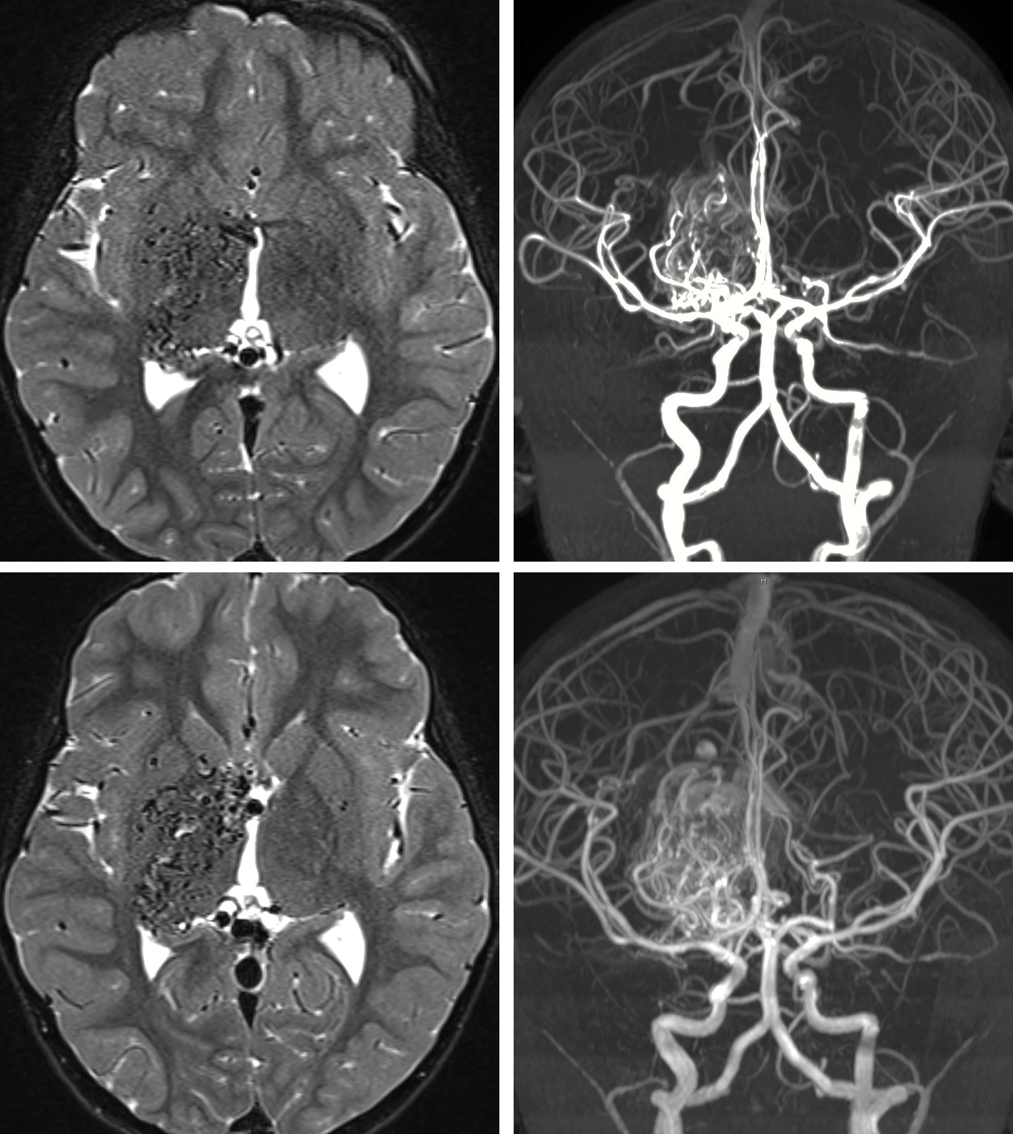 Figure 1: This 6 year-old boy demonstrated evolution and enlargement of his deep AVM within 2 years during follow-up. This case emphasizes the dynamic nature of pediatric AVMs. The top and bottom row MR images were obtained at 4 and 6 years of age, respectively.