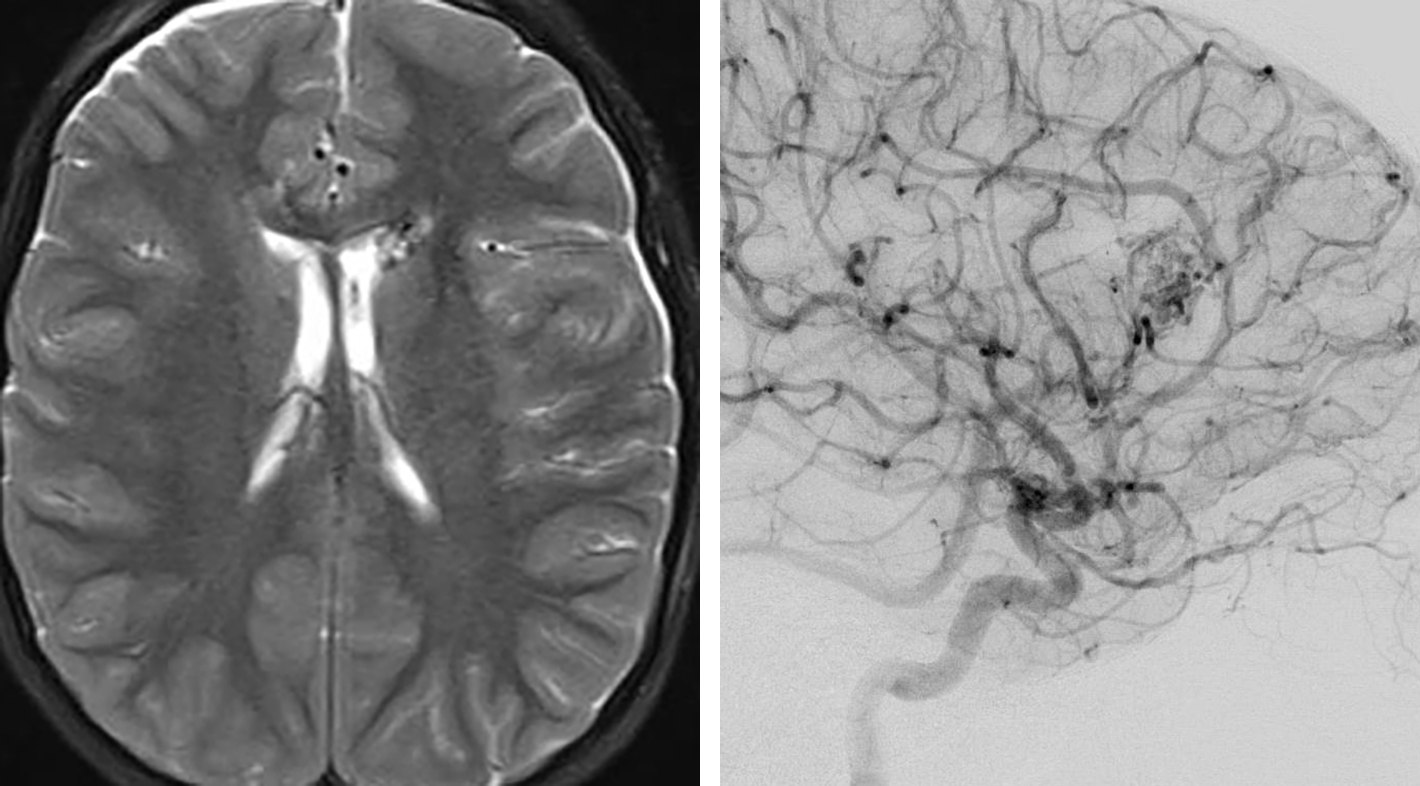 Figure 2: This 14-year-old boy had undergone angiographically proven complete resection of his callosal AVM a decade earlier. He presented with a recurrence near the area of previous resection and underwent a repeat resection. Please note the rather diffuse angioarchitecture of this AVM, characteristic of some immature pediatric AVMs.