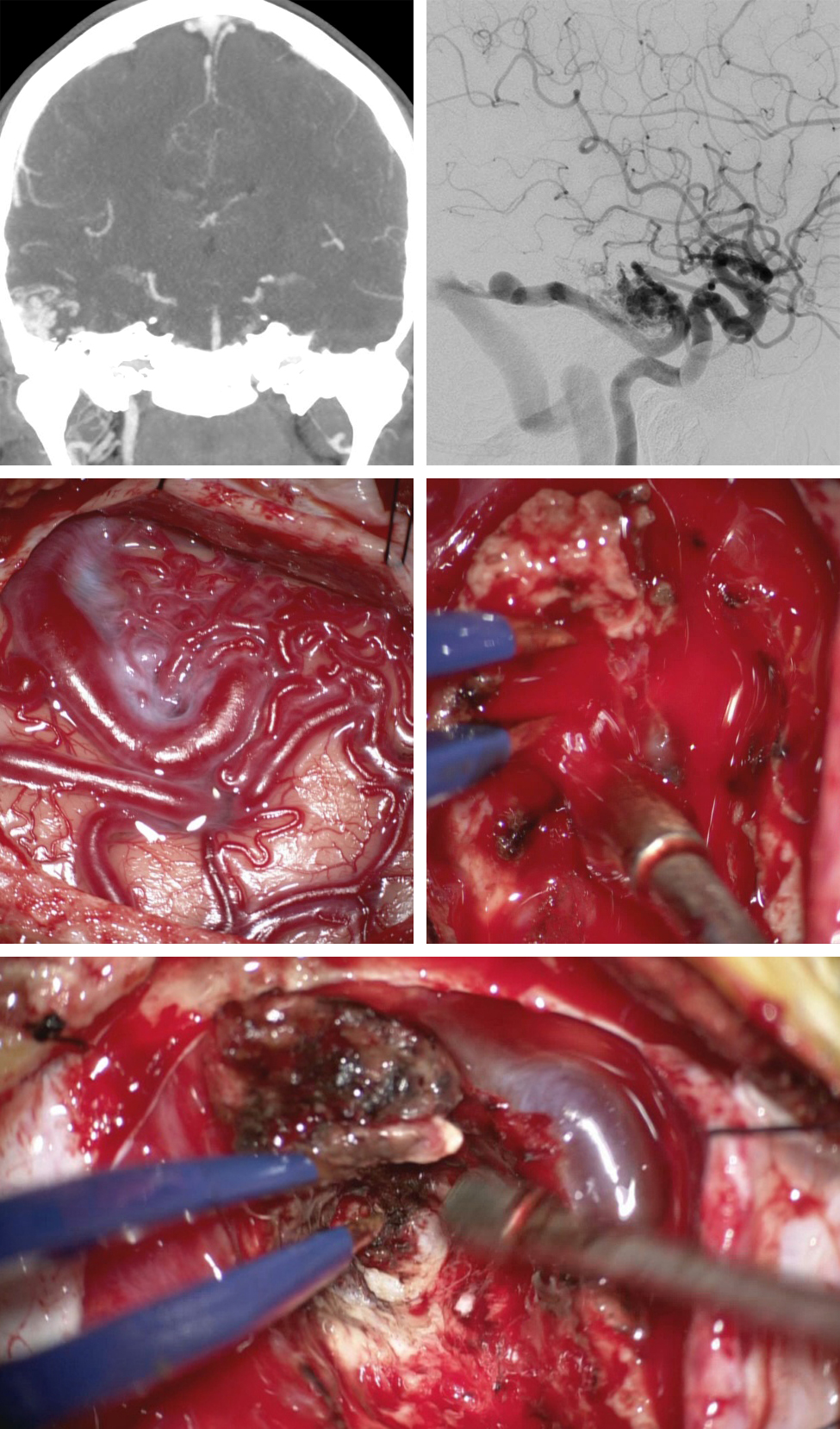 Figure 3: A relatively small lateral temporal AVM associated with an arterialized vein of Labbe underwent resection (first row). The surface anatomy of the AVM is shown; during dissection of the nidus, the dominant draining vein that was wrapping around the nidus was inadvertently injured (second row).  The AVM was removed immediately to avoid excessive bleeding and development of intracerebral hemorrhage (last row). Please see the corresponding video at the beginning of this chapter for subsequent management strategies.