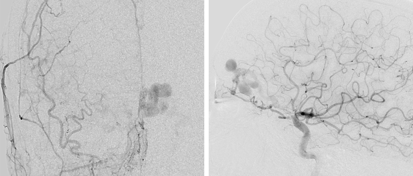 Figure 2: An anteroposterior angiogram of the left external carotid artery (left) and a lateral angiogram of the left internal carotid artery (right) demonstrate an ethmoidal dAVF that is fed by the anterior ethmoidal and falcine arteries and drains into an arterialized cortical vein associated with venous varices.