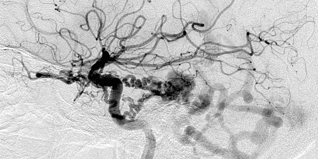 Figure 3: A lateral internal carotid artery (ICA) angiogram demonstrates a tentorial/petrosal dAVF, supplied by the tentorial feeders from the ICA and draining into the petrosal vein with arterialization of the posterior fossa veins.