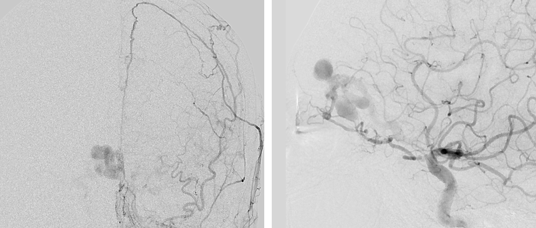 Figure 1: Anteroposterior (AP) angiogram of the left external carotid artery (left) and lateral angiogram of the left internal carotid artery (right) demonstrate an ethmoidal dAVF, fed by the anterior ethmoidal and falcine arteries and draining into an arterialized cortical vein associated with venous varices.