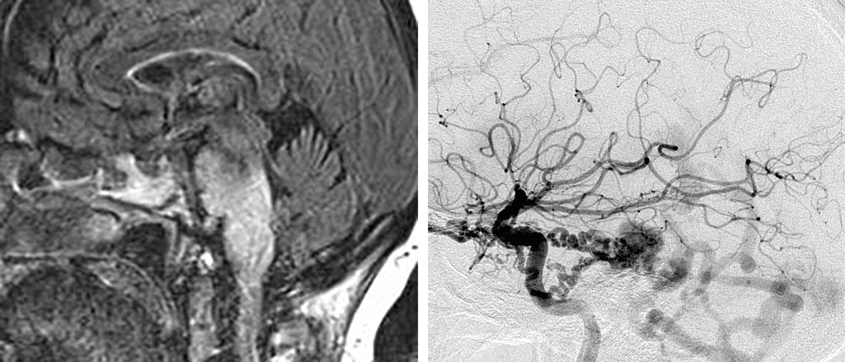 Figure 1: A petrosal dAVF may rarely lead to symptomatic venous hypertension within the brainstem (left image). A lateral internal carotid artery (ICA) angiogram (right) demonstrates a petrosal dAVF supplied by tentorial feeders from the ICA and draining into the petrosal vein with arterialization of the posterior fossa veins.