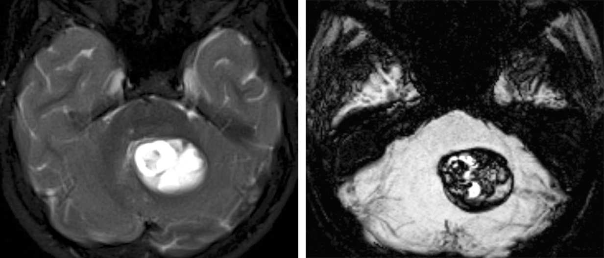 Figure 3: Susceptibility weighted imaging (SWI) and gradient echo (GRE) sequences often play an important role in the diagnosis of CMs. In the T2-weighted left image, a cerebellar cyst was suspected, but upon the review of the minimum intensity projection (mIP) reformats of the SWI sequence, the appearance of the hypointense lesion is most consistent with a CM.