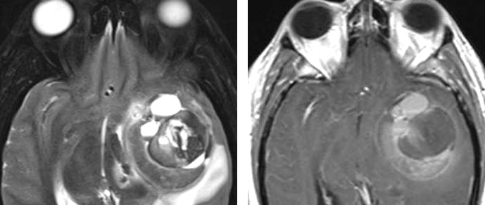 Figure 2: A left temporal CM in a patient who presented with a seizure. Note that the mass resembles a thrombotic aneurysm on the T2 weighted sequences (left), but this differential diagnosis was was excluded using a preoperative arteriogram. The results on the enhanced sequences resemble those of a high-grade glioma (right).