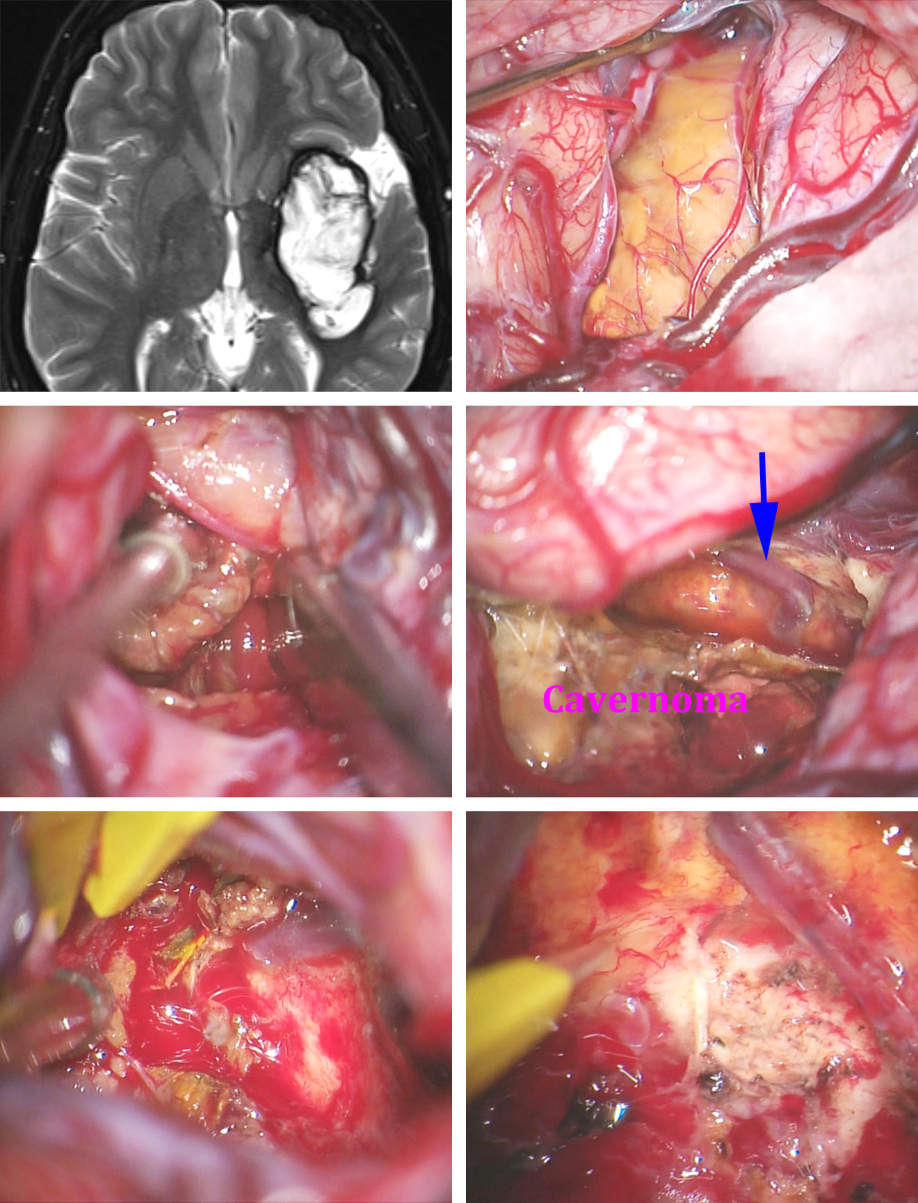 Figure 8: Resection of a left-sided insular CM is shown. The transsylvian approach unveiled the lateral capsule of the malformation after the MCA branches were mobilized (upper photos). I evacuated the contents of the capsule using pituitary rongeurs and mobilized the capsule away from the gliotic margins and the developmental venous anomaly (middle row-blue arrow). After gross total removal of the capsule, minor residual CM was encountered upon careful inspection and was removed (lower row). The resection cavity only contained gliotic margins without any evidence of malformation (lower right photo).