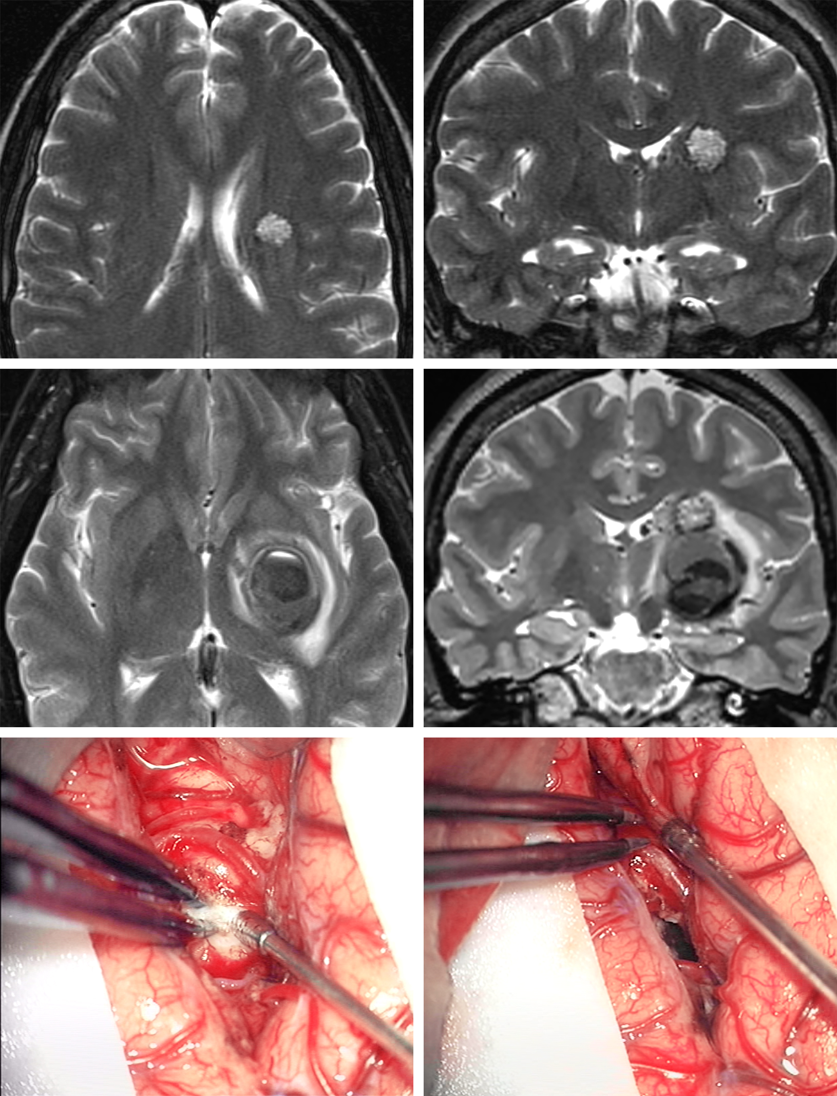 Figure 1: A young woman presented with headaches and was diagnosed with a relatively small periventricular CM without acute extracapsular hemorrhage on magnetic resonance (MR) imaging (upper photos). Because of the asymptomatic nature of the lesion, a lack of acute hemorrhage on imaging, and its deep location, the malformation was managed expectantly. She returned one year later with another hemorrhagic event that left her with a hemiparesis (middle row of images). She subsequently underwent a posterior transsylvian transinsular resection (lower row of images).