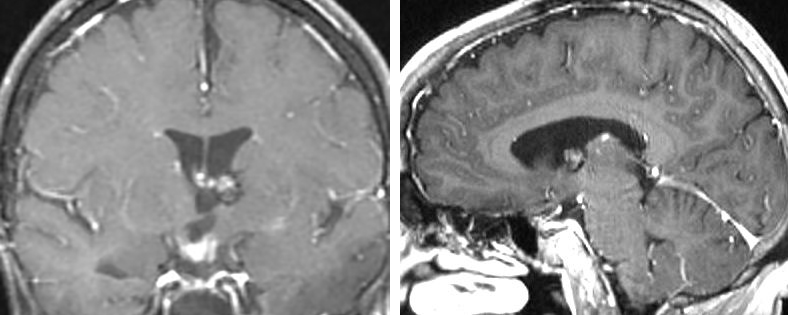 Figure 6: A CM in the anterior and superior aspect of the thalamus is evident. This lesion was reached via a contralateral interhemispheric transcallosal route.