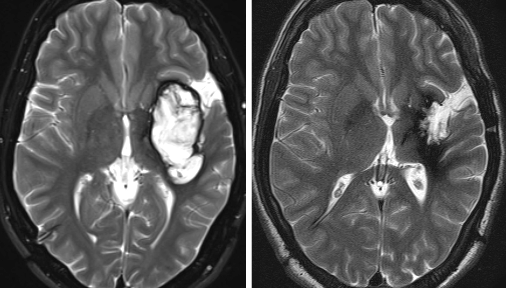 Figure 9: A lateral insular CM (left) was resected via the transinsular route. The extended gliotic margins encompassed the descending motor tracts. These gliotic margins were carefully protected during resection (right).