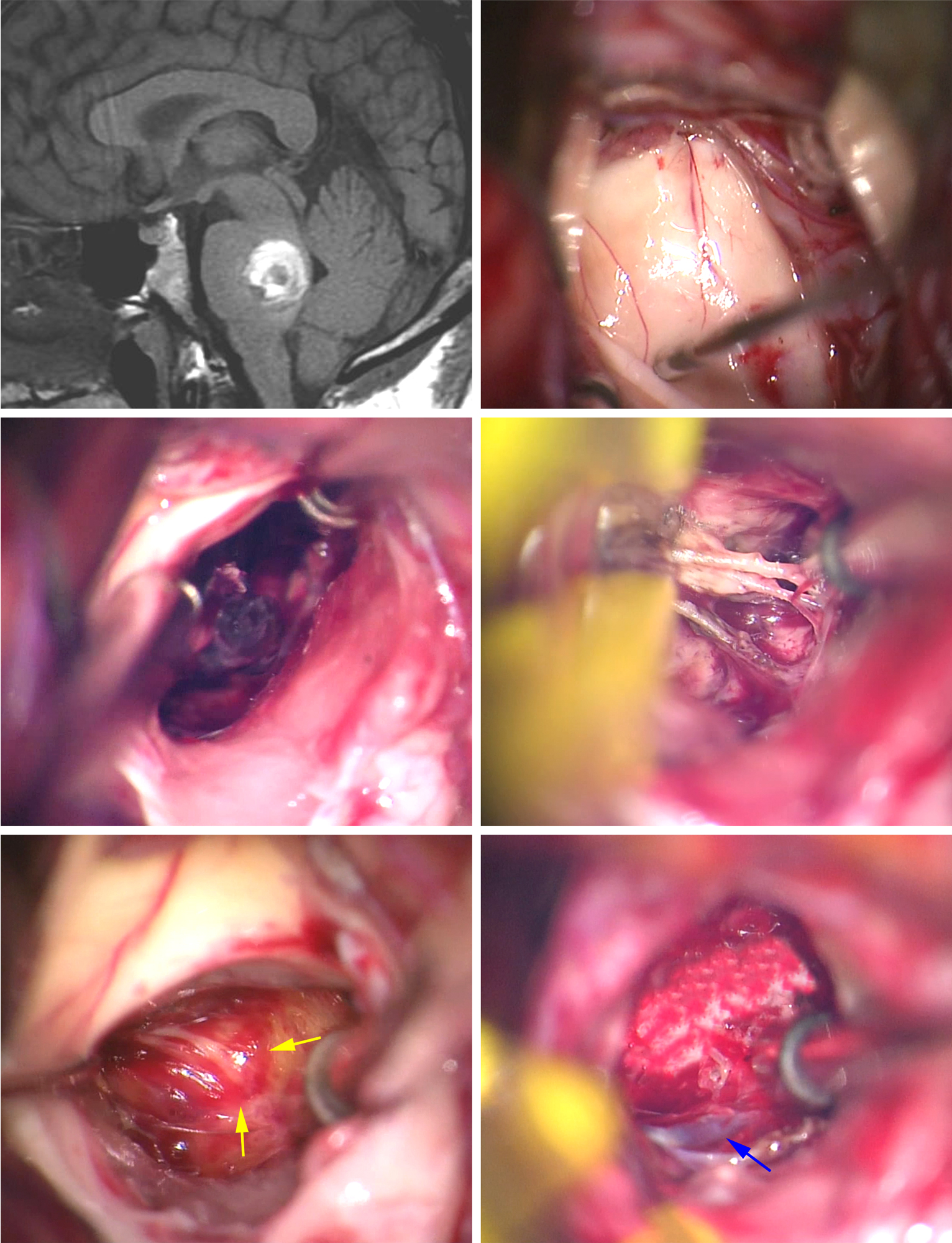 Figure 7: This posterior pontine CM was accessed via the telovelar approach and mapping of the facial colliculus on the floor of the ventricle (upper row of photos). Evacuation of the hematoma provided additional space; the feeding arteries were coagulated and cut (middle row). The capsule was then bluntly dissected away from the gliotic wall (yellow arrows) of the resection cavity while the DVA (blue arrow) was preserved at the end of resection (lower row).