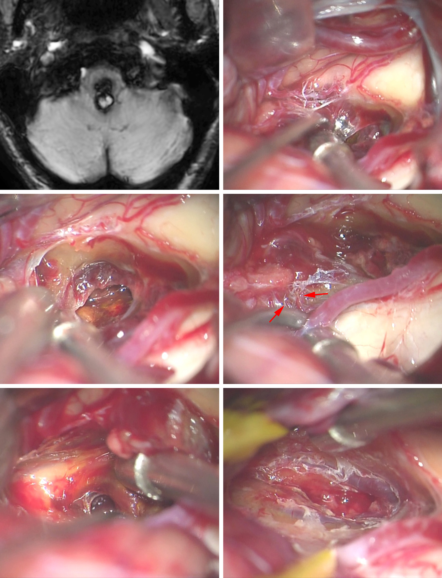 Figure 11: This posterior medullary CM was exposed by means of a suboccipital craniotomy, and the terminal feeding vessels to the CM were identified early (upper row of images). The hematoma within the CM was decompressed, exposing additional terminal feeders arising from the contralateral PICA (middle row, arrows). The CMs can be compartmentalized (left lower image), and therefore a thorough and judicial inspection of the resection cavity is essential for their gross total resection. The DVAs are evident on the walls of the cavity (right lower image).