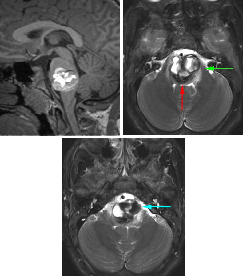 Figure 12: This pontomedullary cavernous malformation was situated essentially within the center of the brainstem. There was a thin rim of normal fourth ventricular floor at the posterior edge of the lesion that precluded the use of a posterior midline approach (red arrow).  I used the left-sided retrosigmoid route (green arrow) to create a pial incision between CN's V and VII/VIII to enter the superior section of the lesion.  In addition, the mass reached the pial surface at the level of the pontomedullary junction and this second operative corridor was also accessed (blue arrow) to remove the inferior pole of the malformation.