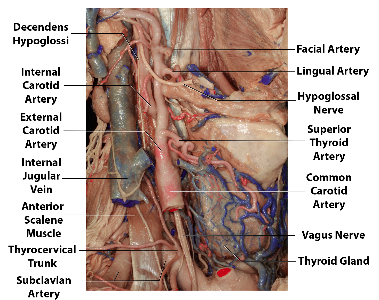 Figure 2: The relationship between the vasculature and the nerves in the neck as related to CEA are summarized. The vagus nerve lies deep to the carotid artery and the hypoglossal nerve crosses the ECA and distal ICA. If the operator is disoriented early in dissection before exposure of the carotid sheath and continues dissection more toward the midline (most often related to too much head turn) onto the pharyngeal muscles, postoperative swallowing difficulty is likely. This complication should be avoided by lateral redirection of the dissection along the medial belly of the sternocleidomastoid muscle without injuring the jugular vein.