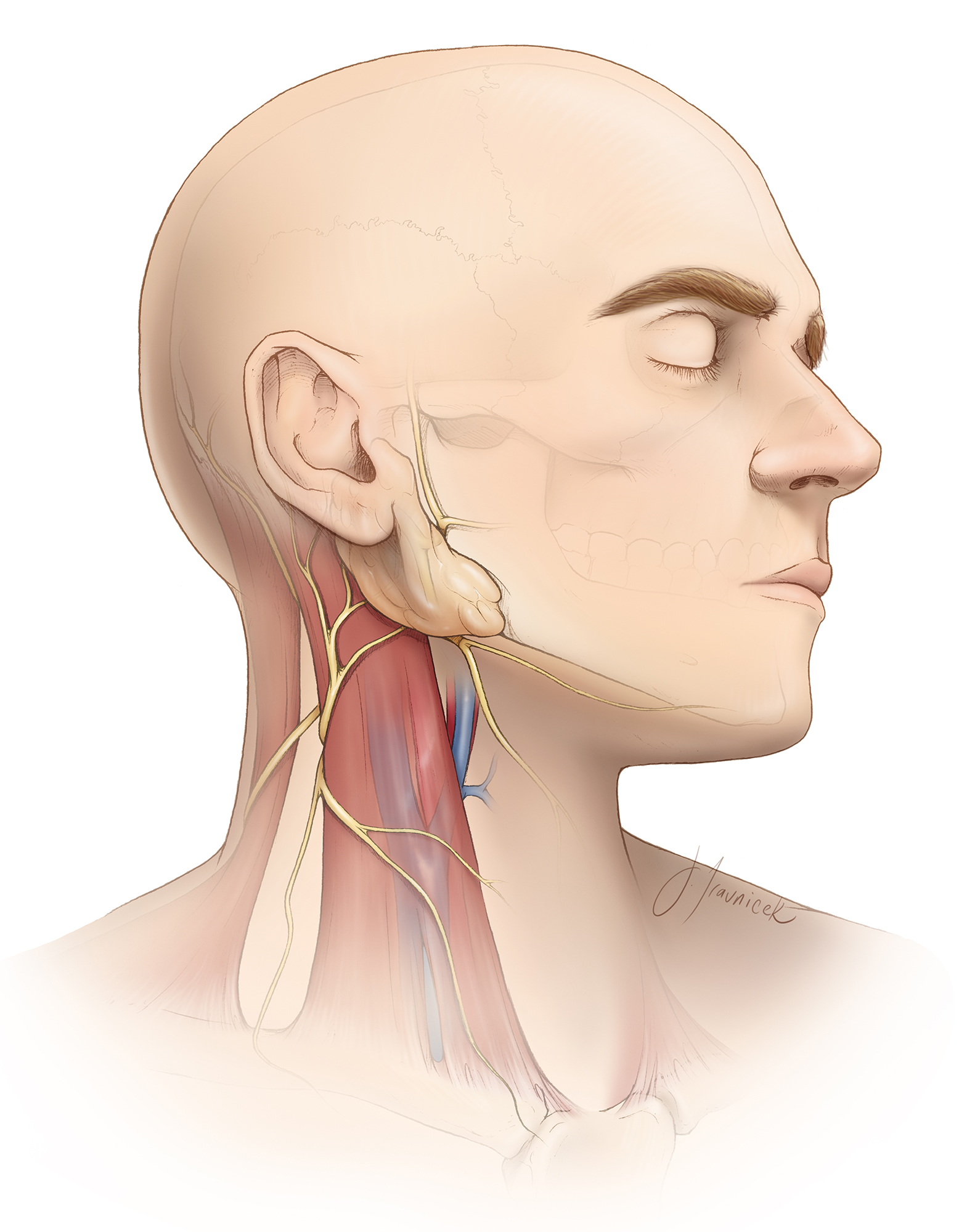 Figure 4: The anatomic relationship between the sternocleidomastoid muscle and jugular vein is the key landmark for reaching the carotid arteries. The marginal mandibular branch of the facial nerve is especially at risk during dissection and retraction of the soft tissues around the angle of the mandible. Its palsy will lead to an asymmetrical postoperative smile upon elevation of the lower lip on the affected side. This weakness is temporary.