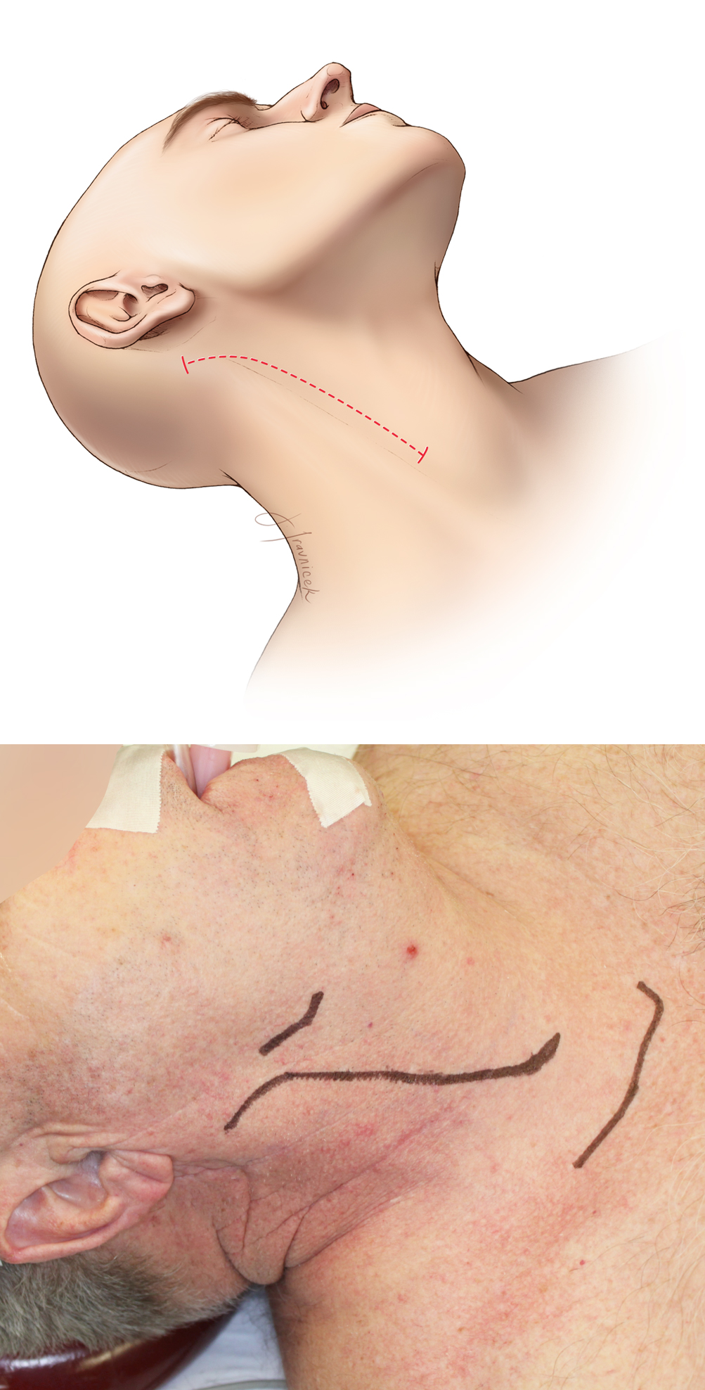 Figure 5: A vertical incision is made extending from just above the angle of the mandible to just below the thyroid cartilage, along the anterior border of the sternocleidomastoid muscle (top image). The incision may be enlarged as low as the suprasternal notch and as high as the retroauricular region, depending on the level of the bifurcation. The incision should not closely approach the angle of the mandible to decrease the risk of marginal mandibular branch injury. The angle of the mandible and the sternal notch are marked (bottom photo). Note the slight rotation of the patient's neck.
