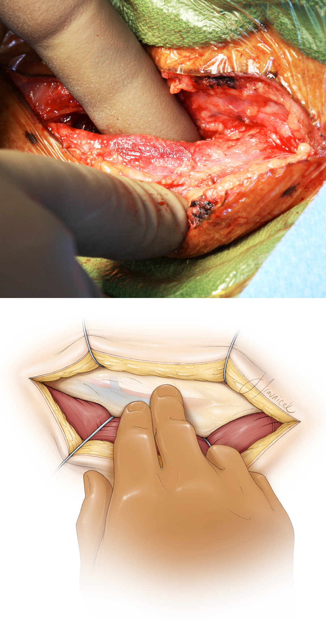 Figure 7: Upon gentle lateral reflection and retraction of the sternocleidomastoid muscle, I palpate the soft tissues along the medial aspect of its belly for the pulse and the location of the carotid artery. Note the direction of the palpation just along the medial surface of the muscle (top image). Division of the soft tissue planes between the sternocleidomastoid muscle and the midline swallowing muscles identifies the jugular vein. Fish-hook retractors may be employed to expand this plane, but the recurrent laryngeal nerve or the esophagus should not be injured by the hooks or retractor blades (bottom image).