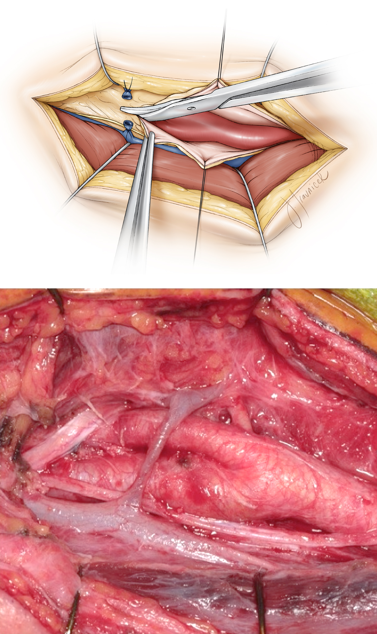 Figure 9: Division of the carotid sheath is illustrated (top image). Next, the carotid artery is dissected circumferentially free of its sheath using the continuous spreading action of a Tonsil clamp. The common facial vein, ansa cervicalis, and the hypoglossal nerve are depicted (lower photo). Preservation of the normal anatomy is the goal.