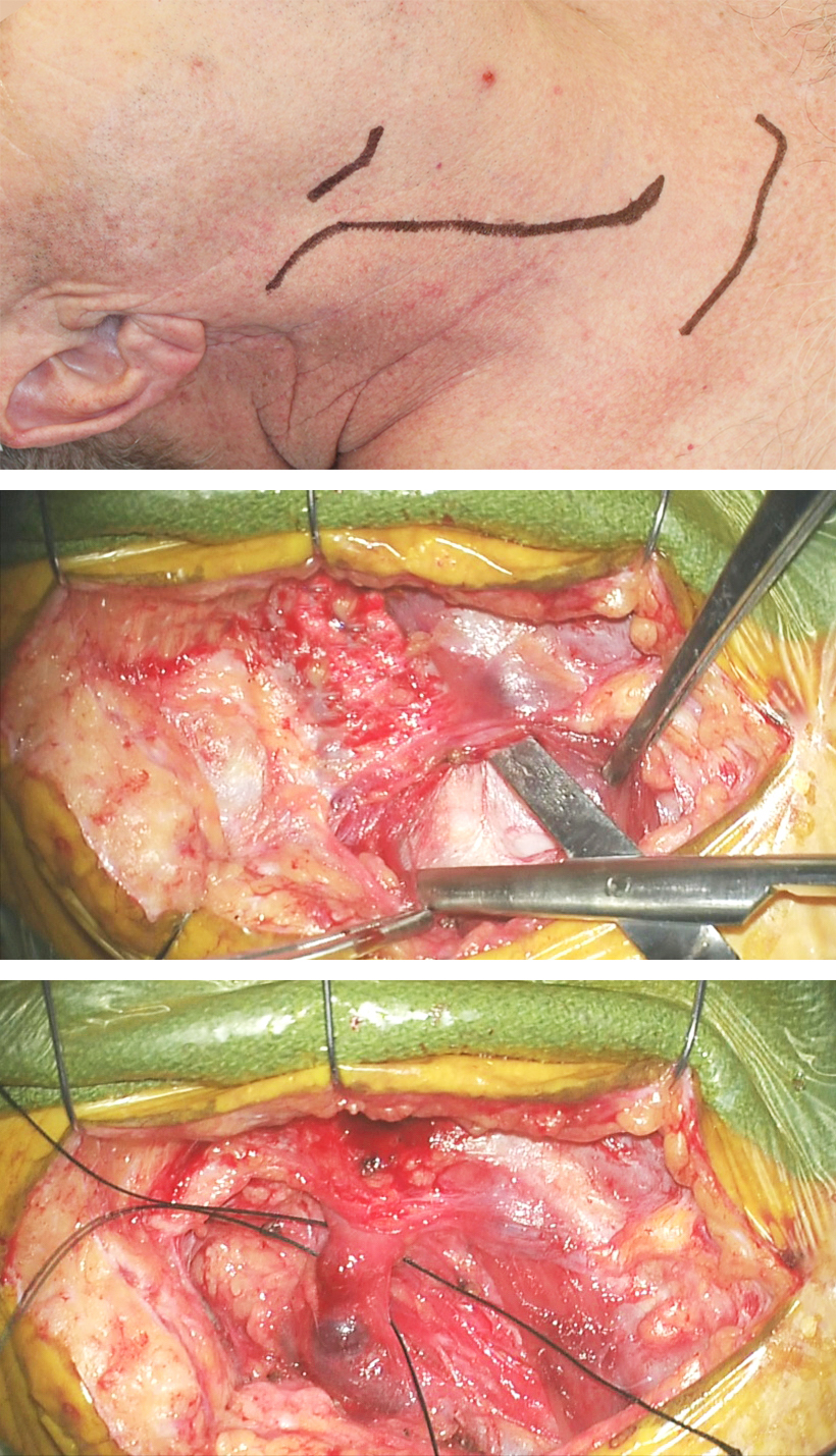 Figure 22a: The skin incision (top) and the spreading action of the scissors for exposure of the carotid sheath (middle) are demonstrated. The common facial vein is isolated and two sutures will ligate the vein.
