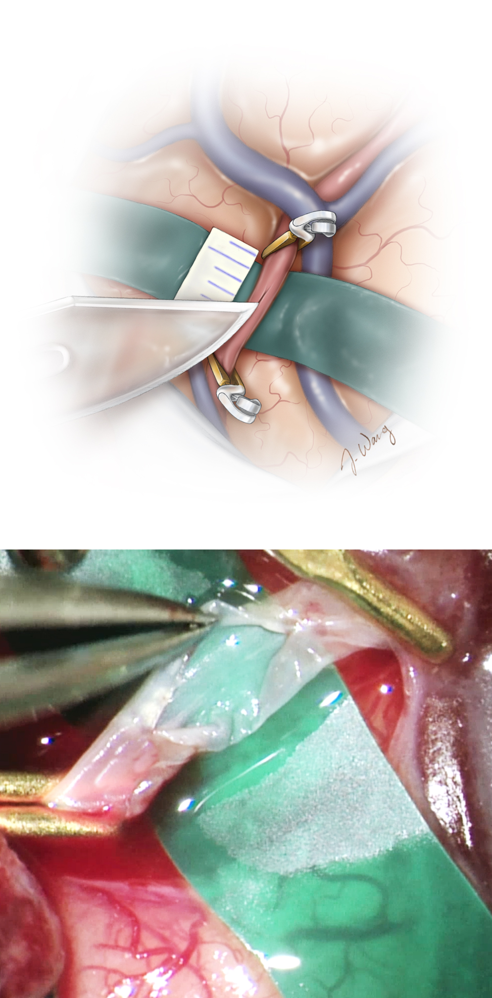 Figure 8: The cortical MCA branch is then temporarily clip occluded using two miniclips, and a diamond-shaped arteriotomy is completed using a number of different blades, including a beaver ophthalmic blade or diamond knife. This arteriotomy is then extended using microscissors to about 2–3 times the diameter of the distal end of the STA branch. A 5-mm segment of the ruler is cut and used for these measurements.