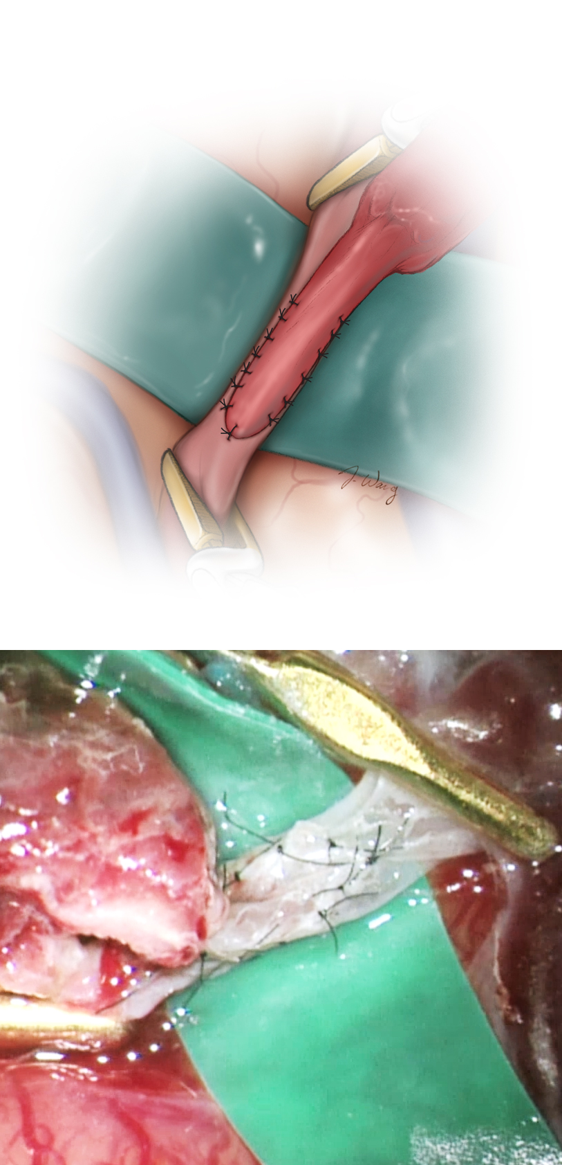 Figure 11: I prefer the use of interrupted sutures during the STA-MCA revascularization to minimize the risk of kinking within the anastomosis, which is possible with a running-suturing technique. However, the interrupted technique requires a longer period of clamping for its execution. The donor vessel should lay on the brain surface under no tension and remain untwisted.