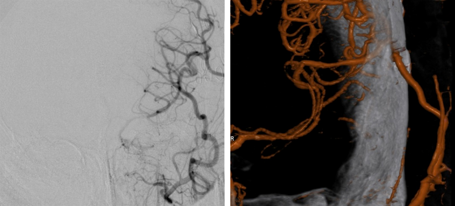 Figure 12: Graft patency is assessed during subsequent follow-up exams after discharge using conventional angiography or CTA. In this angiogram, the left STA-MCA bypass is patent (three-dimensional reconstruction image, right).