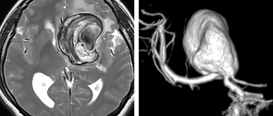 Figure 1: A 6-cm partially thrombotic and calcified left ICA bifurcation aneurysm is shown. Traditional clip ligation methodologies are not effective. This patient underwent a high-flow extracranial ICA-M2 bypass and Hunterian ligation of the ICA distal to the anterior choroidal artery. The flow into the aneurysm sac via the ipsilateral A1 was also clip occluded. Please see the intraoperative photos below for my surgical findings in this case.