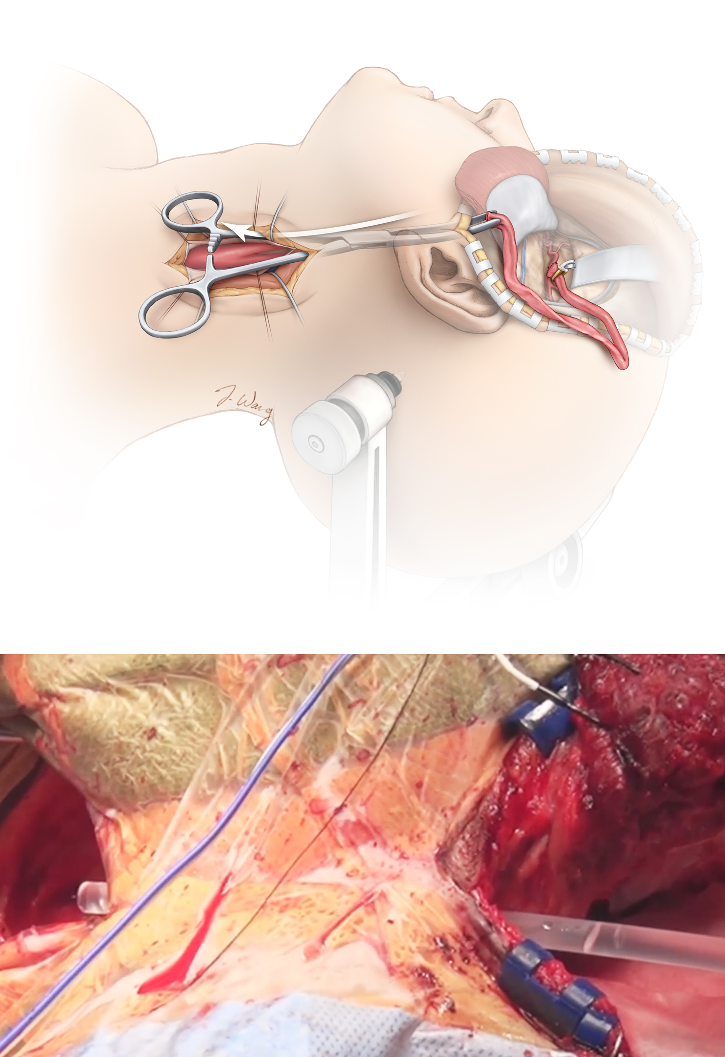 Figure 8: The graft is tunneled from the cranial operative field into the cervical field using a pediatric chest tube. A notch is drilled in the zygoma before tunneling to prevent obstruction of the graft's lumen. A slit is cut in the chest tube to allow the graft to be placed directly inside the tube; this landmark also maintains and confirms the alignment of the tube during its passage and prevents the graft from twisting. The tube is pulled through from the cervical field and the graft is removed from the tube.