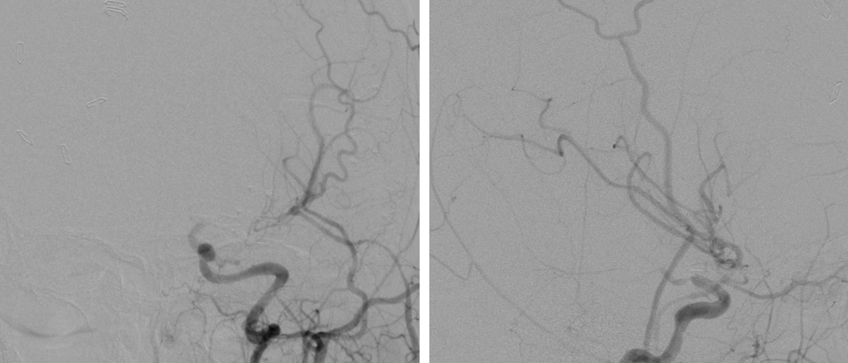 Figure 11: The postoperative angiogram images for the patient in Figure 1 demonstrate a patent interposition graft and exclusion of the aneurysm.