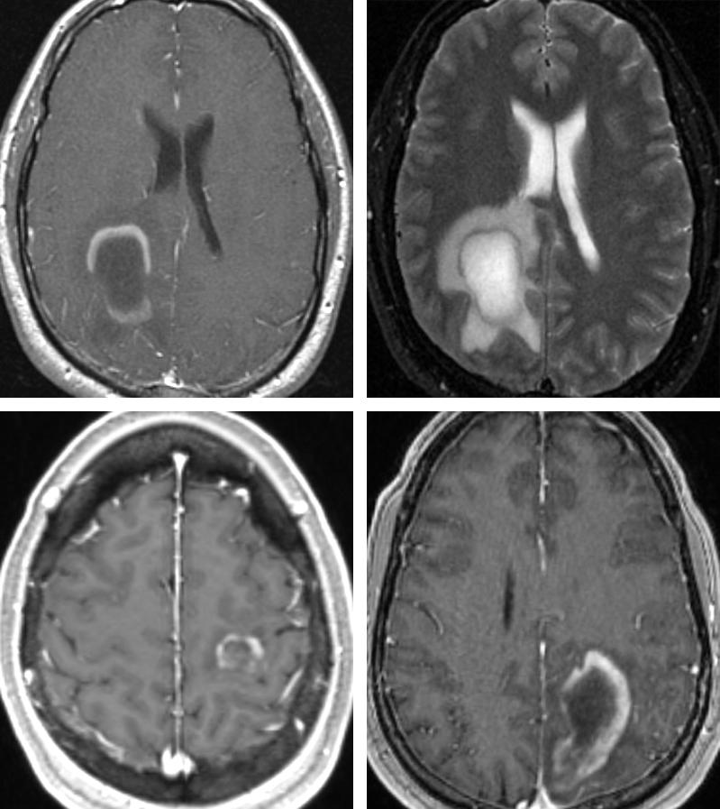 Figure 2: These images show examples of lesions that do not require resection as part of their treatment strategy. These images belong to three patients with multiple sclerosis. Note that the pattern of enhancement is faint in certain locations at the periphery of the lesion. The resultant extent of mass effect is minimal compared with the size of the lesion. Neoplasms frequently lead to more mass effect when they reach a large size.