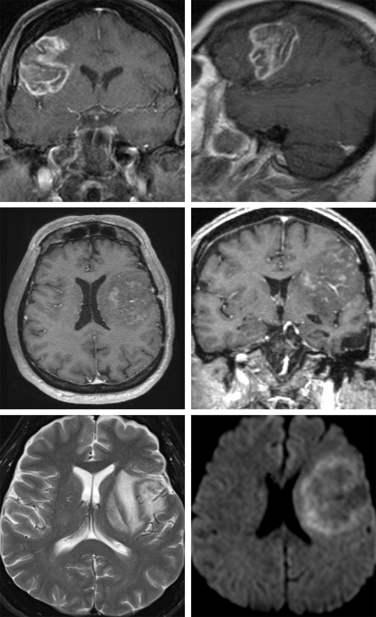 Figure 3: The images of the top row belong to a patient who suffered from a seizure. The MR enhanced images demonstrate gyral enhancement pattern compatible with acute infarction and not a neoplasm. The rest of the images in the subsequent rows belong to another patient with hemiparesis who was thought to have an insular tumor. A careful review of these images advances the suspicion of an infarct as the T2 hyperintensity crosses the striatum (left lower image); this feature is not consistent with tumorous masses that respect the medial gray matter structures. Diffusion imaging (right lower photo) confirms the findings of infarction and avoids unnecessary operative intervention.