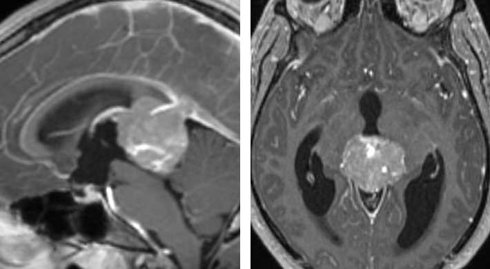 Figure 4: The MRI scan of this 18-year-old boy demonstrates a partially calcified pineal mass. The cerebrospinal fluid markers were consistent with a diagnosis of  germinoma . Surgical resection is not warranted.