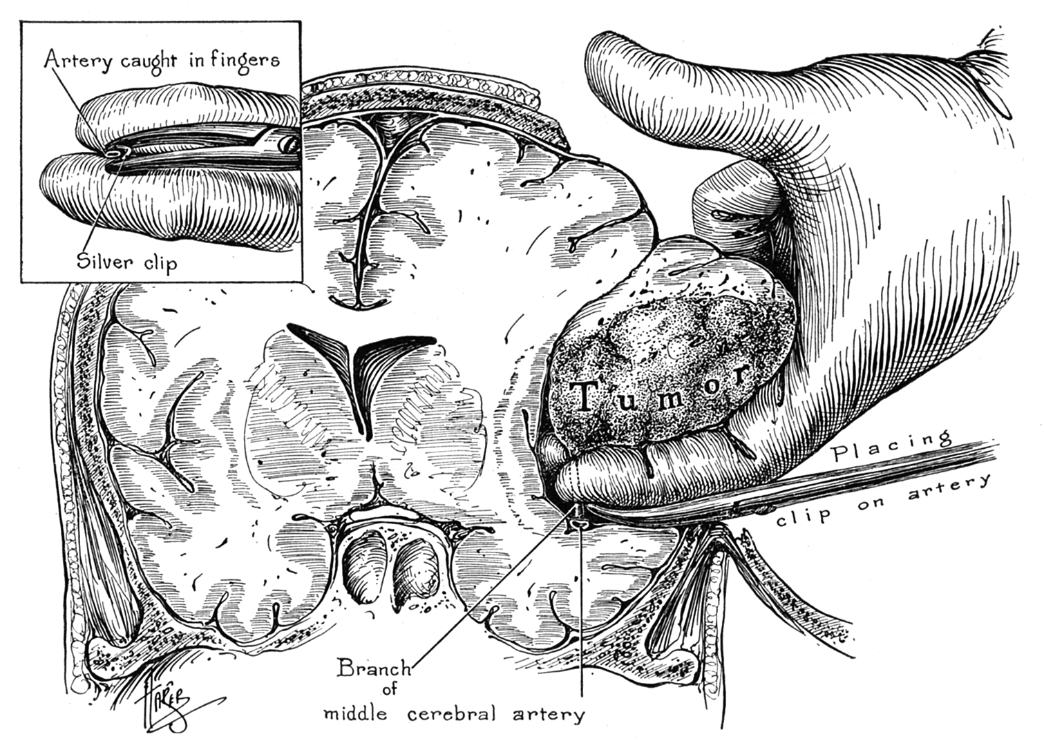 Figure 1: Walter Dandy demonstrates resection of an extra-axial tumor and specifically the clipping of a deep feeding artery (Dandy WE.  The Brain . W.F. Prior Company. Hagerstown, Maryland, 1966.)