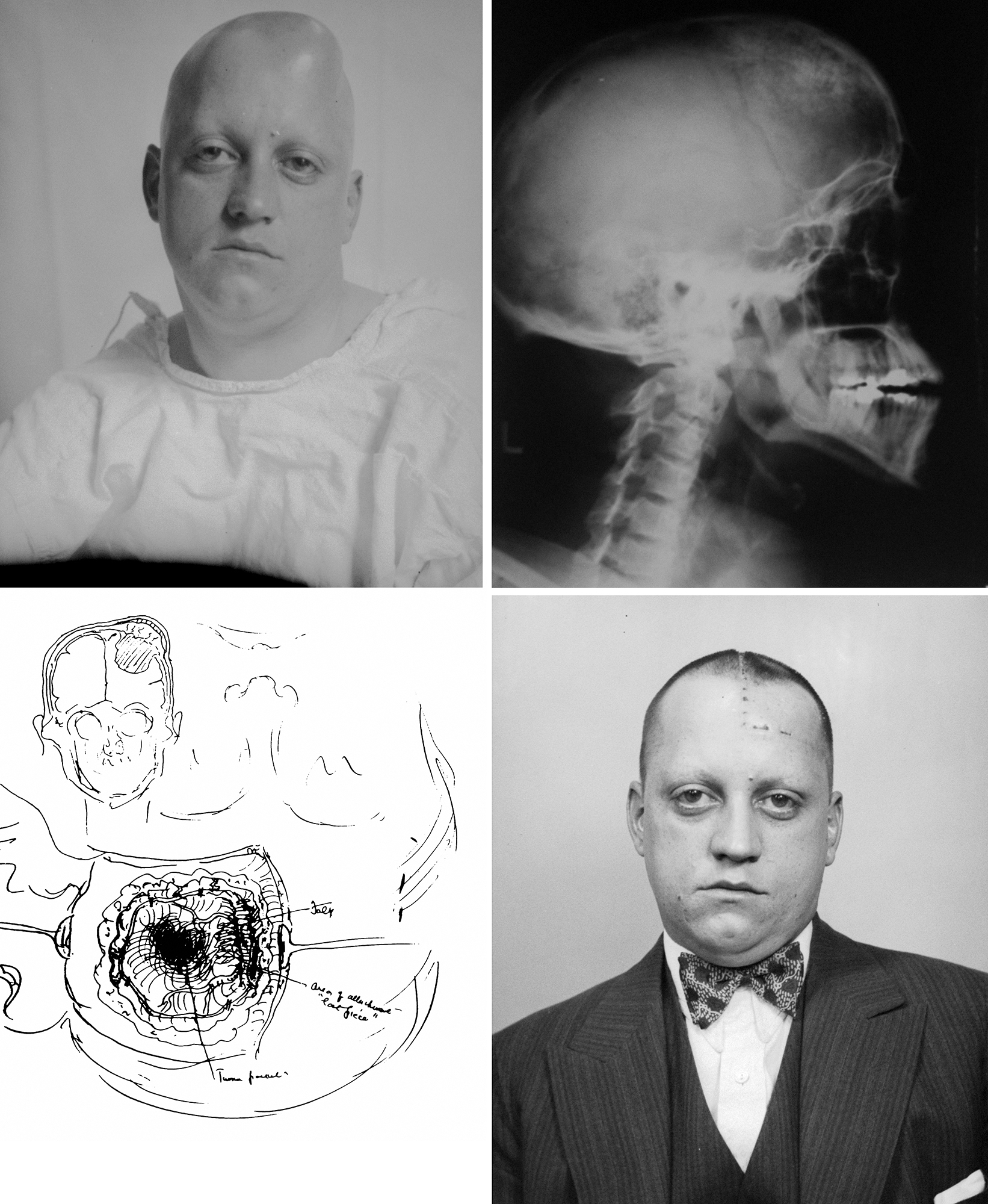 Figure 2: Images of one of Harvey Cushing's patients who underwent resection of a left frontal hyperostotic meningioma. Note the preoperative X-ray image (right upper image), intraoperative findings as sketched by Cushing (left lower image) and postoperative outcome (right lower image) (Courtesy of the Cushing Brain Tumor Registry at Yale University).
