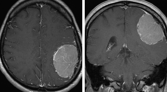 Figure 4: Typical imaging presentation of a convexity meningioma: an intensely homogenously enhancing dural-based tumor with dural tails. Note the vascular star-burst pattern of the tumor at its base.