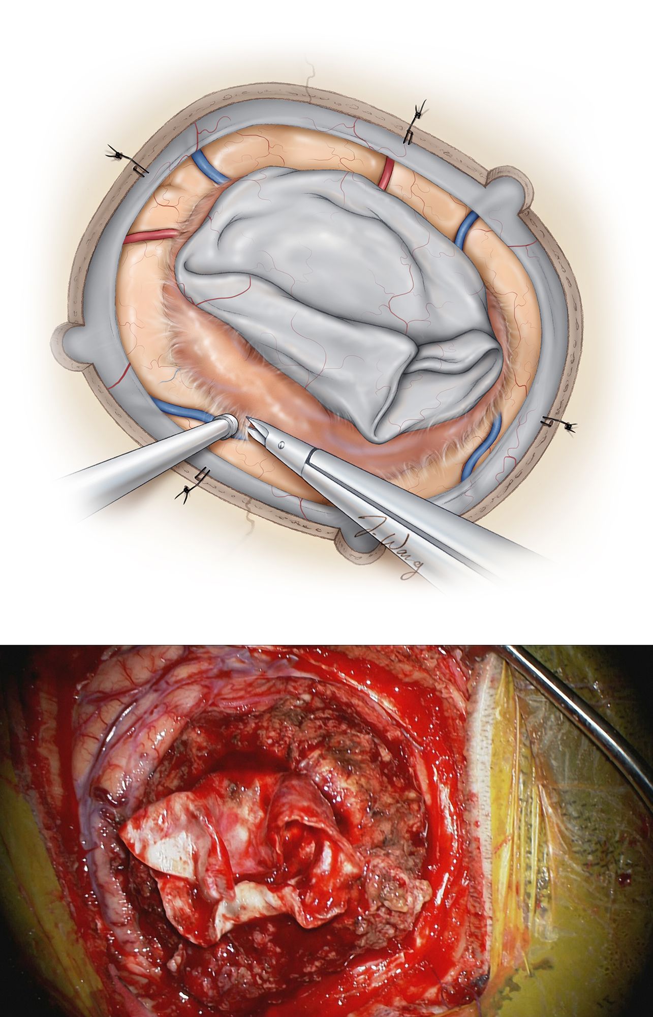Figure 8: The involved dura is left attached to the tumor to assist with tumor retraction. The subarachnoid planes are identified and opened sharply at the periphery of the tumor (upper image). Care is taken to avoid pial violation, especially around the functional cortices. All vessels within the extracapsular plane should be carefully inspected and  en passage vessels protected . This is especially important for more posterior meningiomas because sacrifice of the larger convexity/parasagittal veins may result in disabling venous infarction and postoperative malignant edema. A left parietal meningioma is exposed (lower image-See figure 4 for more details).