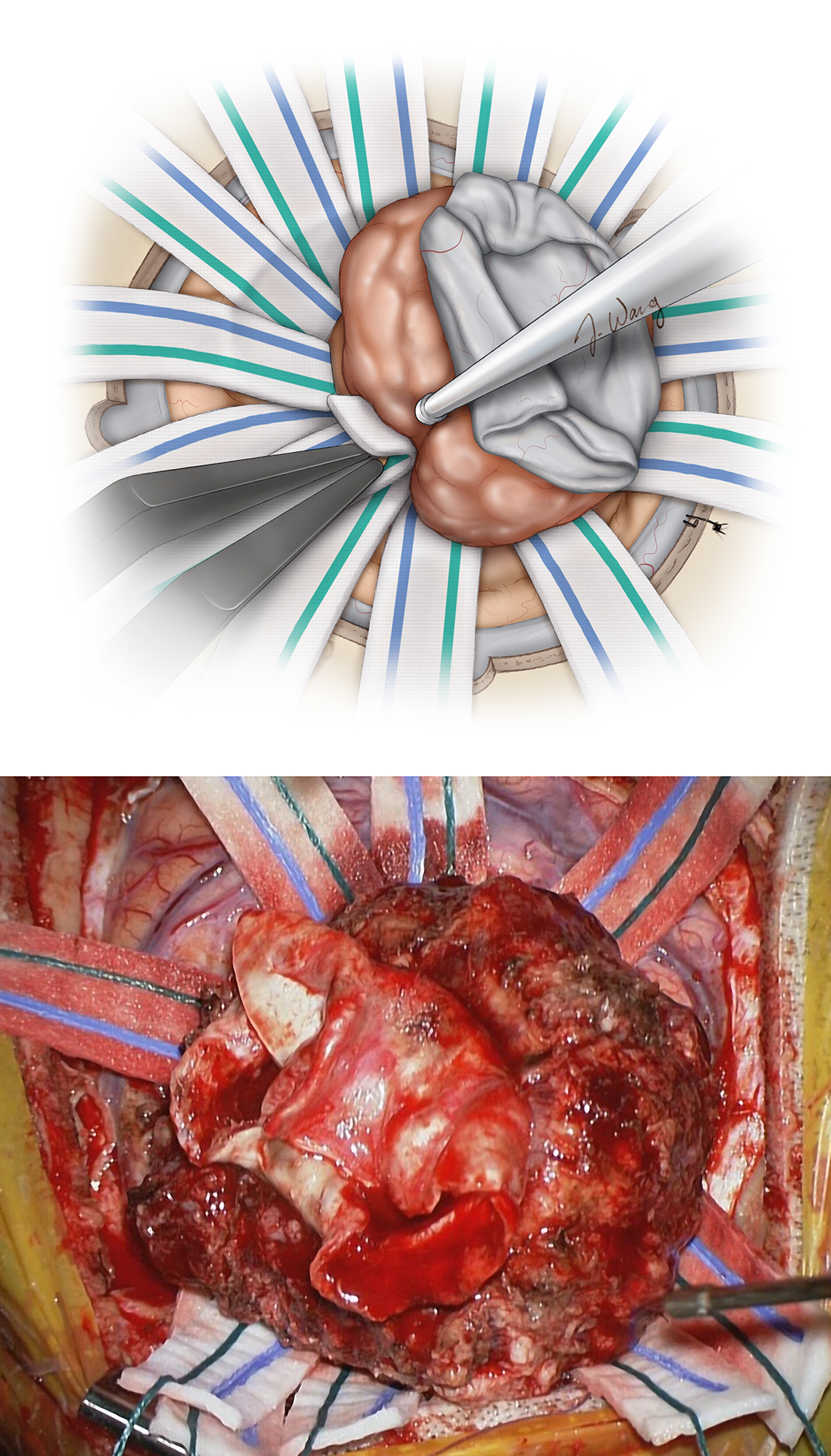 Figure 10: Once a superficial circumferential dissection is complete, the tumor is rolled away from the cortex to allow microdissection at the floor of the tumor bed. Long cottonoid patties are rolled into the depth of the resection cavity to create and preserve the tumor-brain interface (upper image). The tumor is circumferentially dissected free until it delivers itself from the cavity as the underlying brain re-expands (lower image).