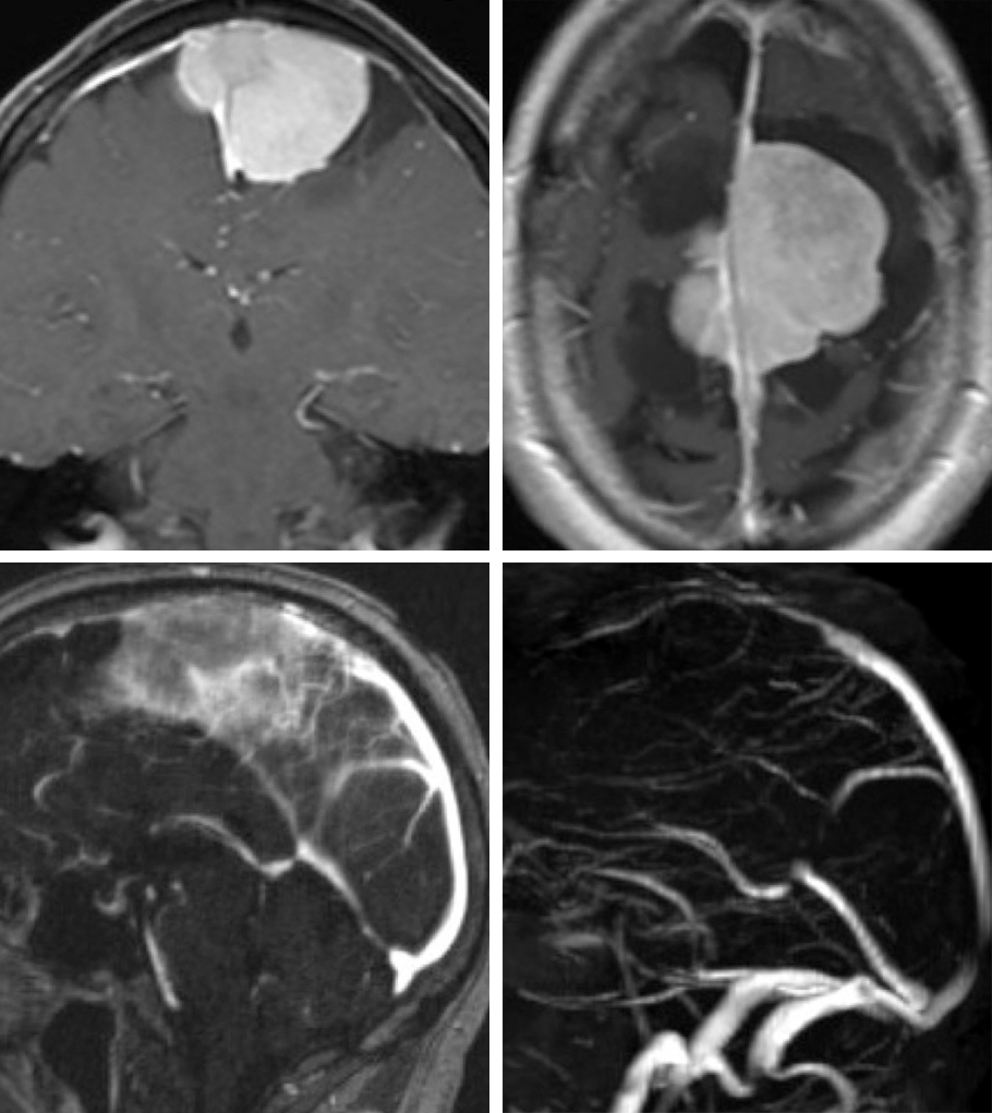 Figure 2: Classical parasagittal meningioma with questionable obstruction of the superior sagittal sinus (upper images). Further evaluation with an MRV demonstrates some flow within the sinus (right lower image). These tumors can invade both sides of the sinus and grow through the falx.