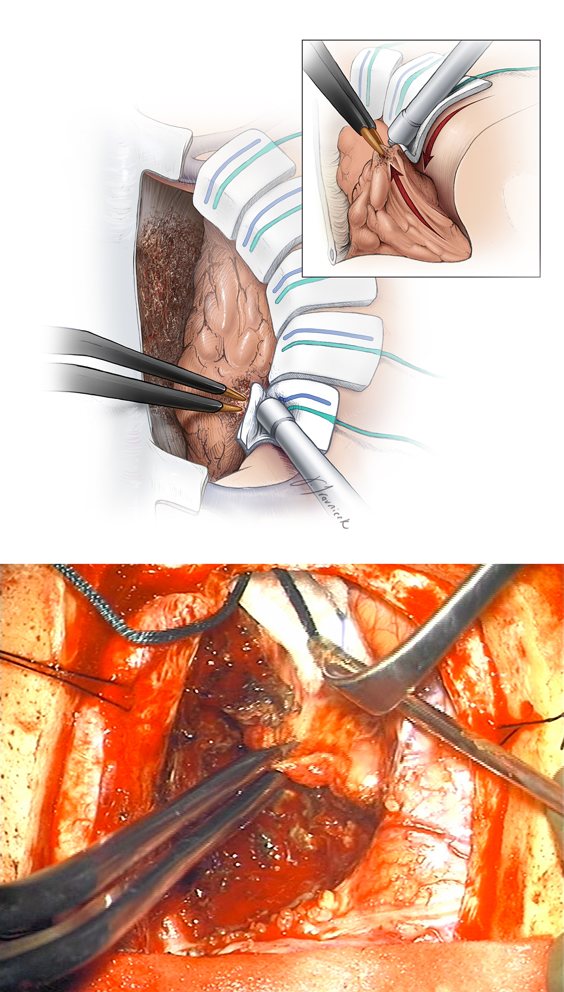"Figure 8: Next, the tumor capsule is sharply dissected away from the surrounding brain. As the tumor capsule is progressively shrunken away from the cortex using bipolar electrocautery, cottonoid patties are used to circumferentially cover the brain as well as develop and maintain a plane between the tumor capsule and the pia. Notice that the plane is developed along the circumference of the tumor evenly instead of superficially to deep in a single spot. This allows easier mobilization of the mass and avoids small working areas in case of bleeding.    If the pial integrity is violated, cottonoid patties are used to ""wipe"" the brain away from the tumor while the tumor capsule is drawn into the resection cavity (upper image inset and lower intraoperative photo). These patties are 'rolled' into the deepest aspects of the resection cavity to facilitate tumor delivery. Critical vessels may be adherent to the tumor capsule and are microsurgically and sharply dissected. The tumor capsule is then freed at its deepest aspect and carefully excised."