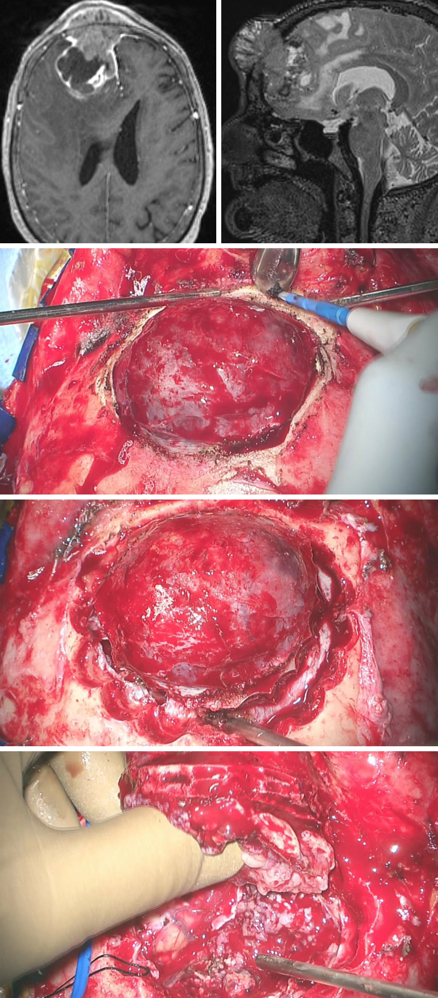 Figure 11: MR imaging demonstrated a transosseous parasagittal meningioma with significant parenchymal edema. In this case, the calverium, dura and the intradural space were affected by the tumor. The extracranial tumor was exposed upon scalp reflection (second row). Multiple burr holes were gradually placed in the periphery of the tumor so that osseous bleeding is controlled in a timely fashion (third row). The dura was incised circumferentially within the connected burr holes and the majority of the tumor was removed  en bloc  (last row). The intradural portion of the tumor that was adherent to the pia was resected in a second step.