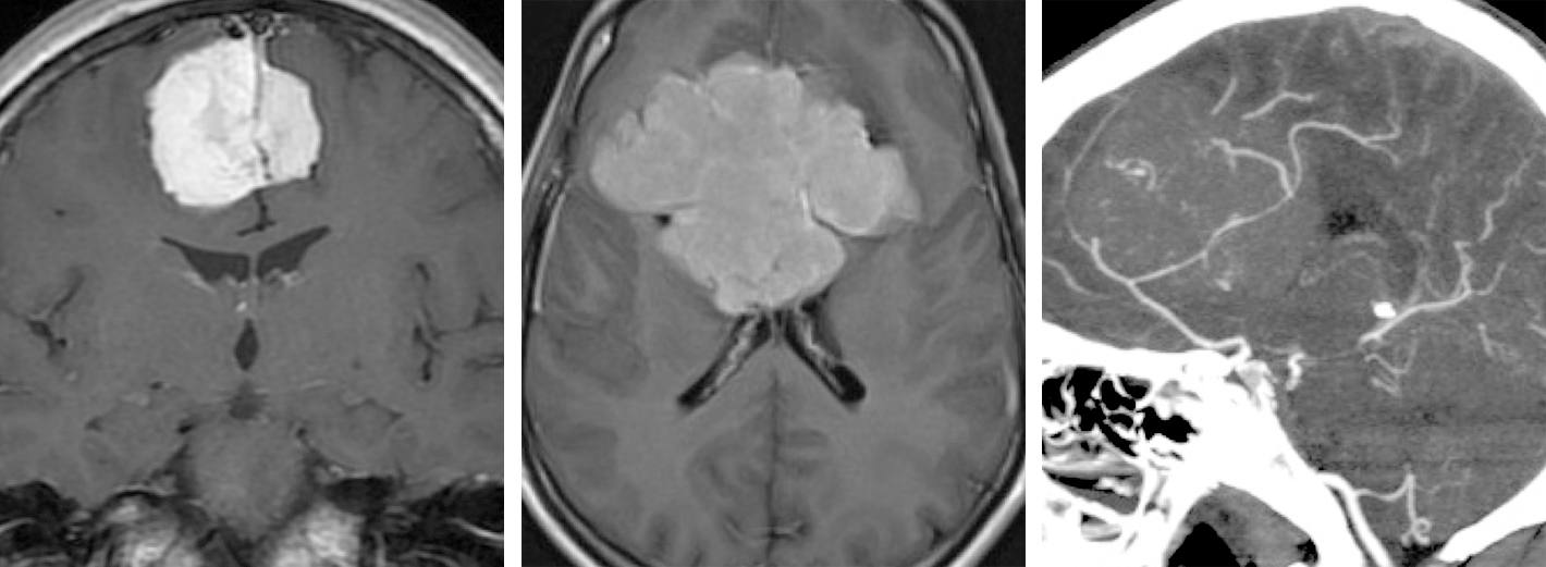 Figure 2: Parafalcine meningiomas are located on the falx and can occur in a range of sizes (top images). A CT angiogram demonstrates encasement of the pericallosal and callosomarginal arteries by a very large tumor.